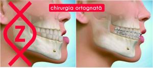 chirurgie ortognată